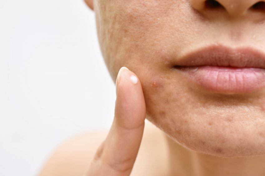 Alimentazione acne cutanea